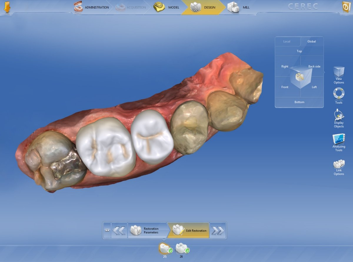 CEREC : Natural experience thanks to Biojaw