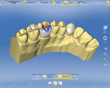 Innovative software gives CEREC a facelift