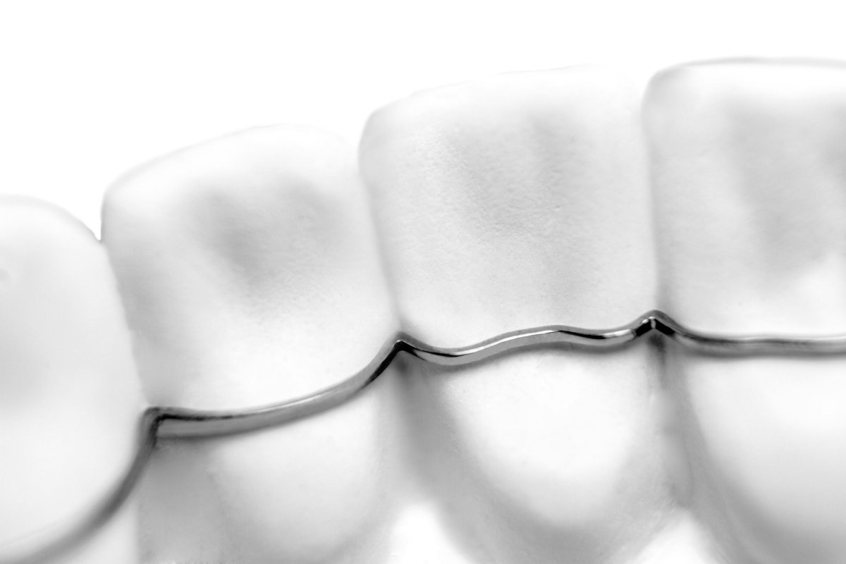 Orthodontic appliances in the digital workflow : Sirona partners with CA DIGITAL